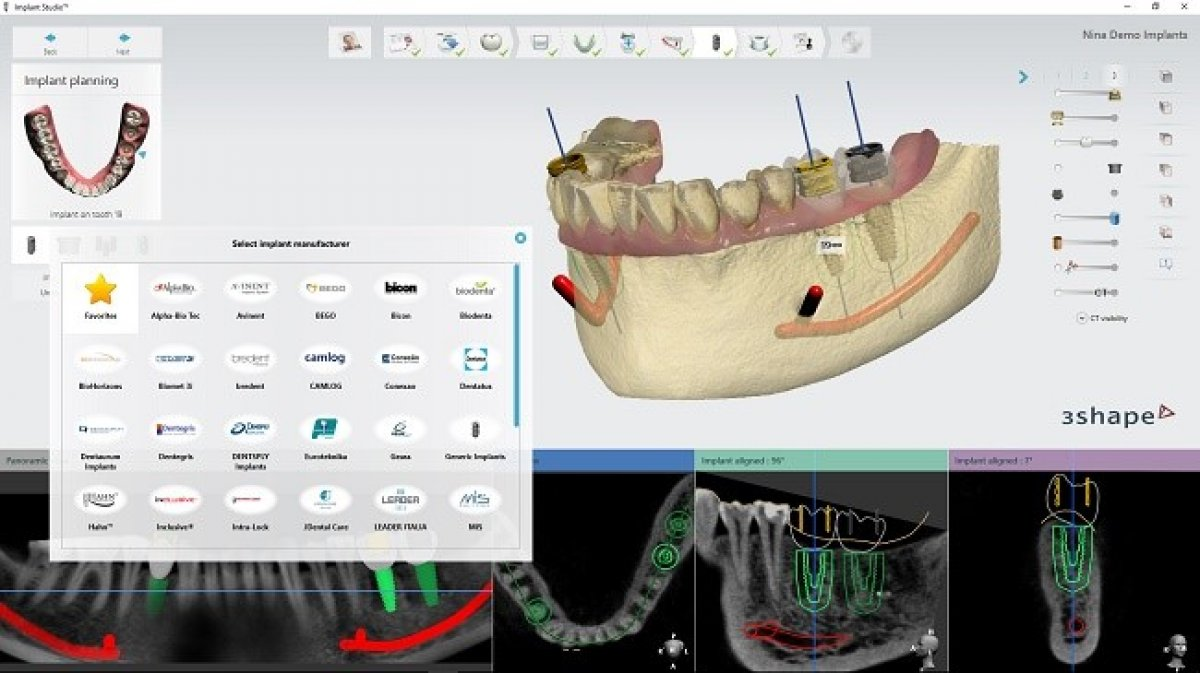 3Shape releases Implant Studio® 2016